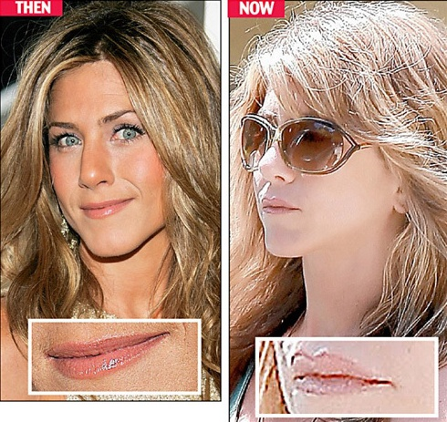 Jennifer Aniston Before Plastic Surgery